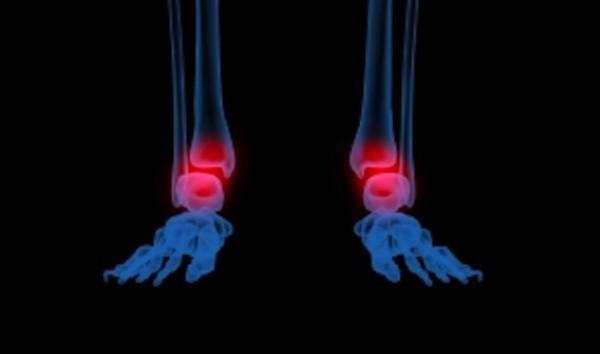 douleurs inflammatoires